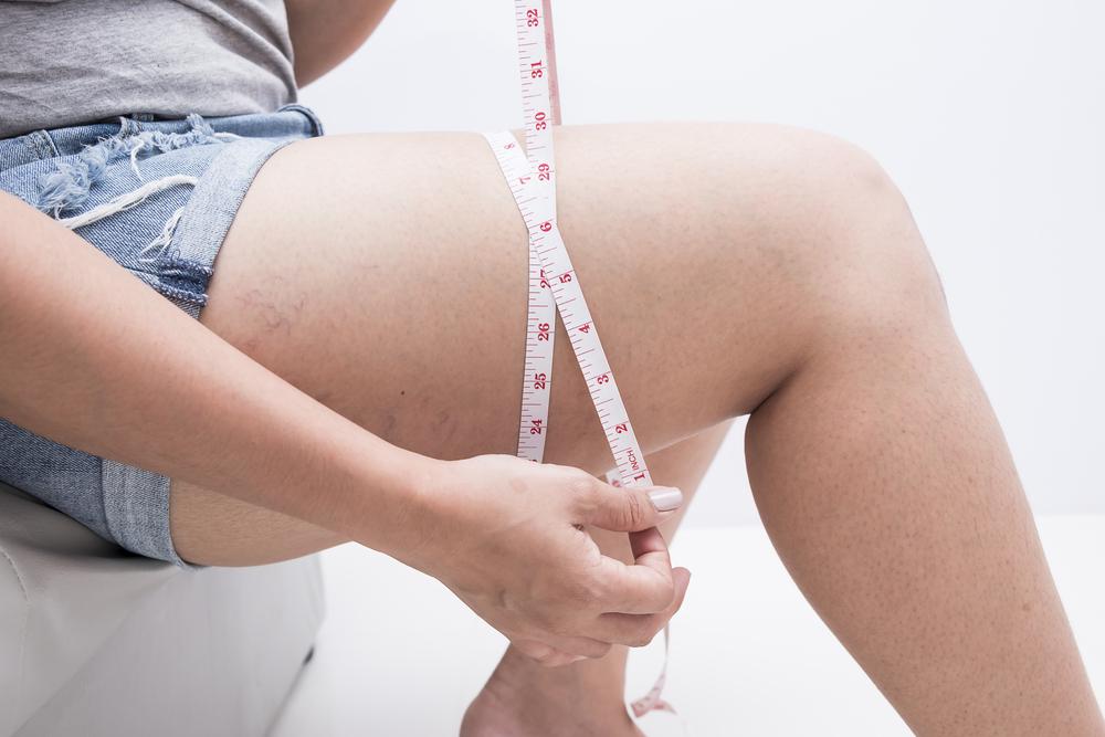 graisse au niveau des cuisses